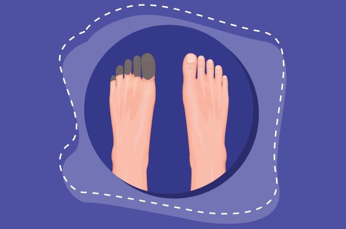 6 Jenis Gangrene, Jaringan Kulit Mati Penyebab Luka