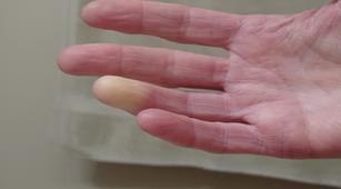 7 Perawatan Skleroderma di Rumah