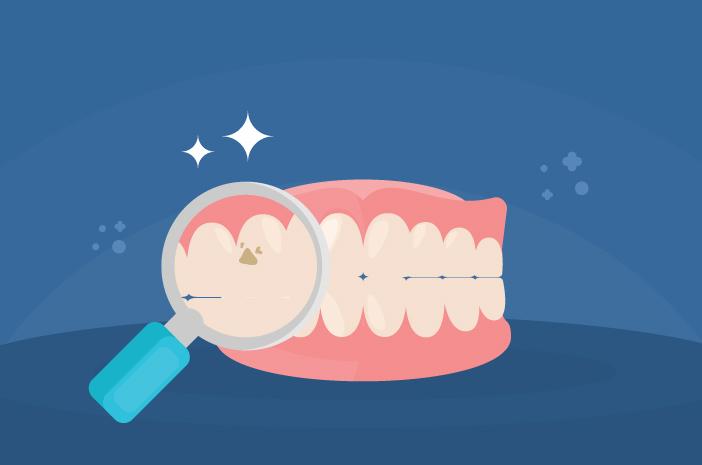 Apa Yang Menyebabkan Gigi Berlubang