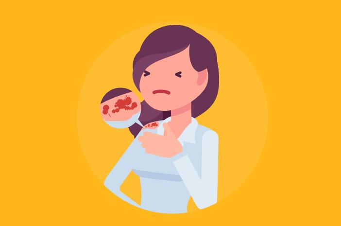 Cara mengatasi epidermolisis bulosa