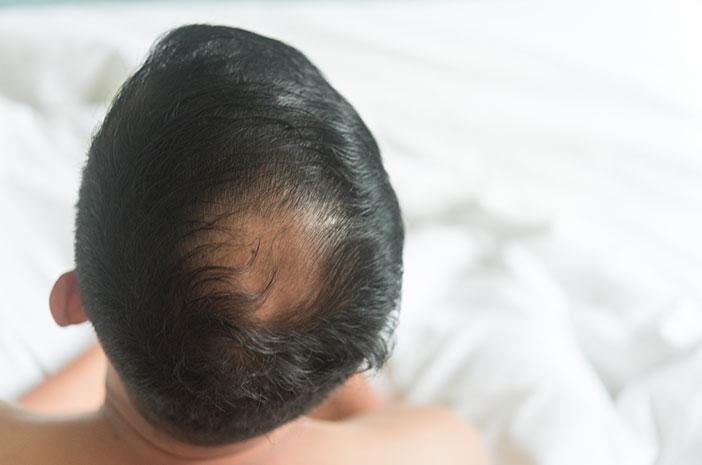 Bahaya Tinea Capitis Bisa Bikin Kepala Pitak