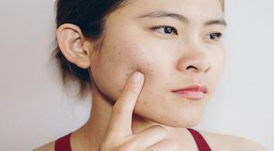 Cara Merawat Kulit Pengidap Rosacea