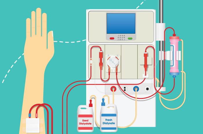 Cuci Darah Bisa Sebabkan Kerusakan Tulang, Benarkah?
