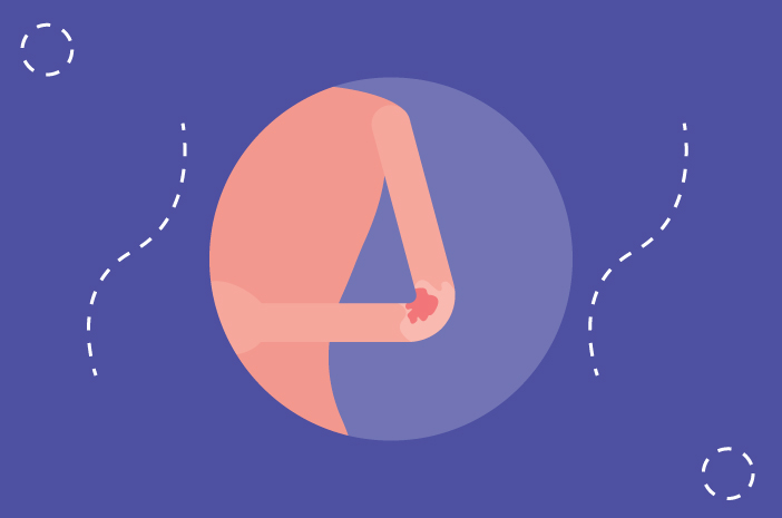 Ketahui Tentang Pityriasis Rosea, Enggak Menular tapi Gatal Minta Ampun