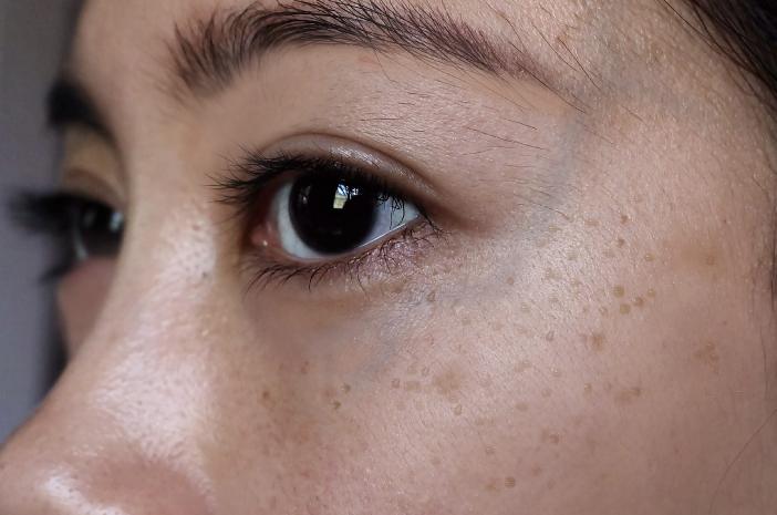 Flek Hitam di Wajah Pengaruh Lingkungan atau Hormon?