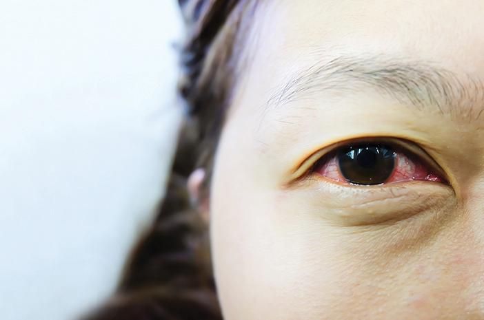 Gejala yang Terjadi pada Perempuan Saat Mengalami Sindrom Sjogren