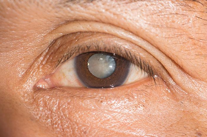 Glaukoma, pengobatan glaukoma, penyakit mata, kebutaan permanen