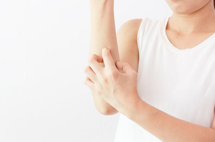 Hati-Hati Gigitan Kutu Bisa Sebabkan Penyakit Lyme