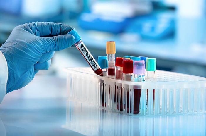 penyebab terkena thalassemia, thalessemia, gangguan kelainan darah
