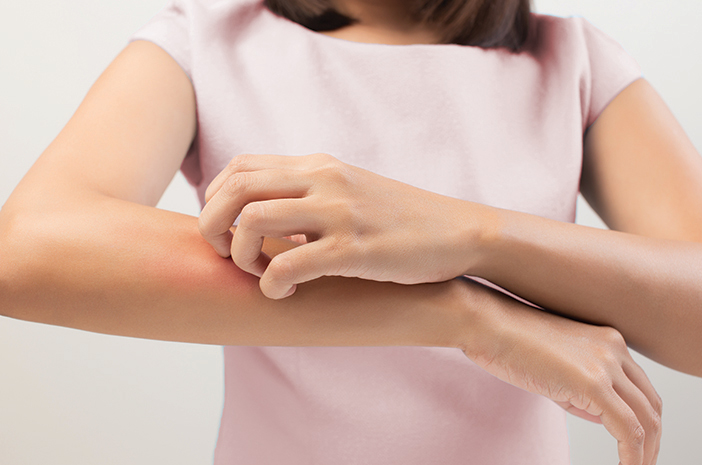 Penyebab terjadinya alergi