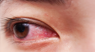 Ini Pengaruh Sindrom Sjogren pada Mata