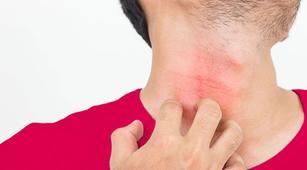Ini Reaksi Umum Tubuh Saat Alergi Dingin Kambuh