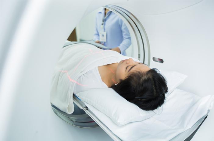 ini 3 faktor risiko terkena tumor otak yang sering diabaikan