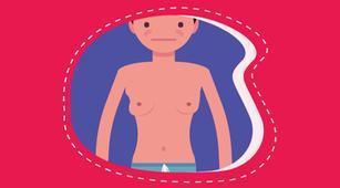 Inilah Tindakan Medis untuk Mengatasi Ginekomastia
