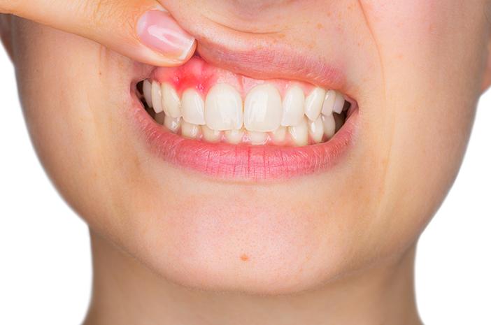 periodontitis, karang gigi, plak pada gigi