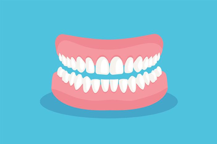 Inilah Gejala dan Pengobatan Periodontitis yang Bikin Gusi Radang