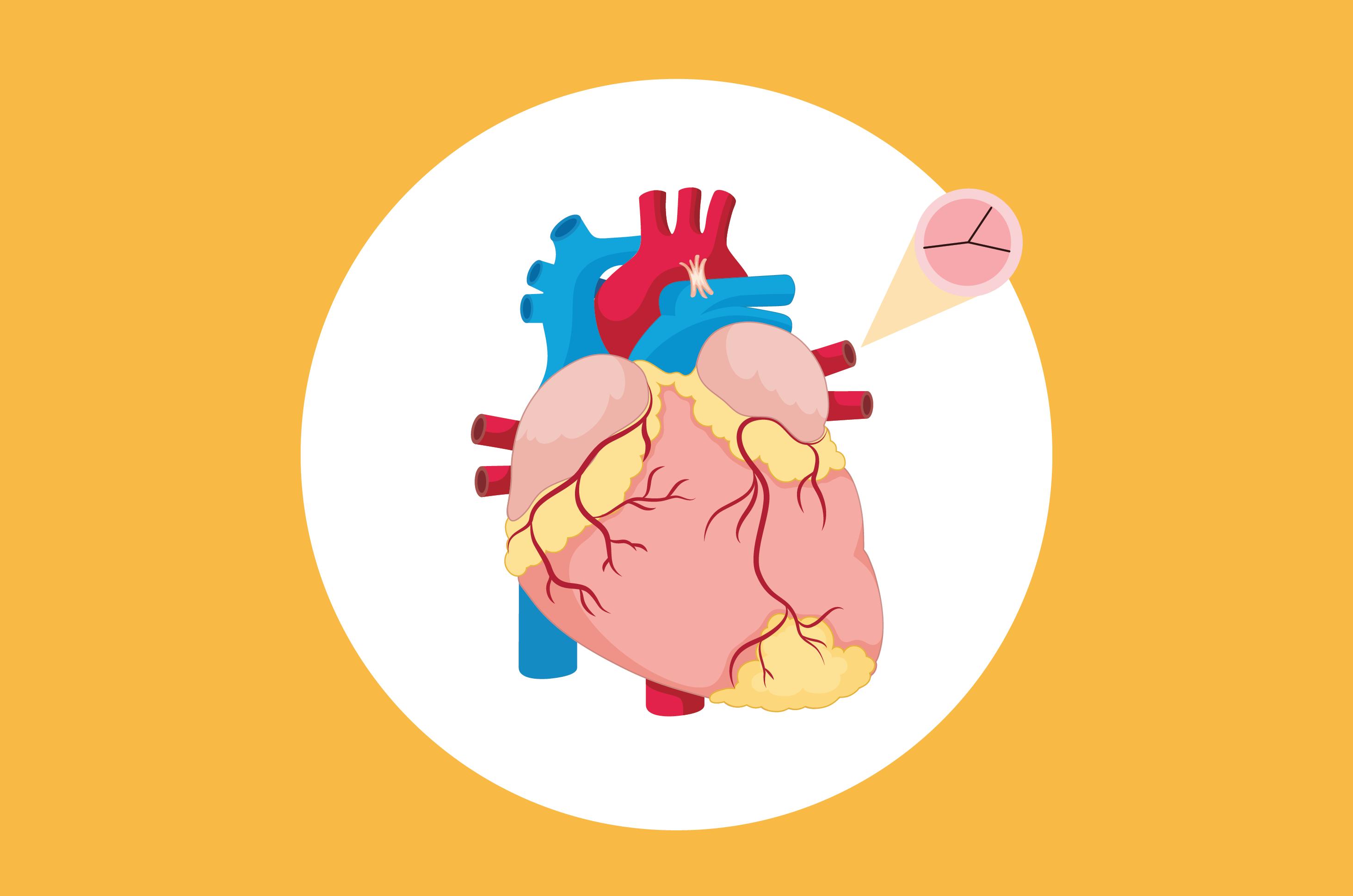 Kenali Tanda-Tanda Gangguan Katup Jantung yang Jangan Diabaikan
