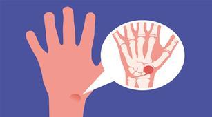 Kenali 7 Jenis dan Gejala Sarkoma Jaringan Lunak