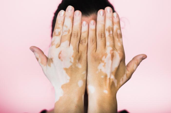 Sembuhkan Penyakit VITILIGO dengan Produk NASA - kelainan warna kulit