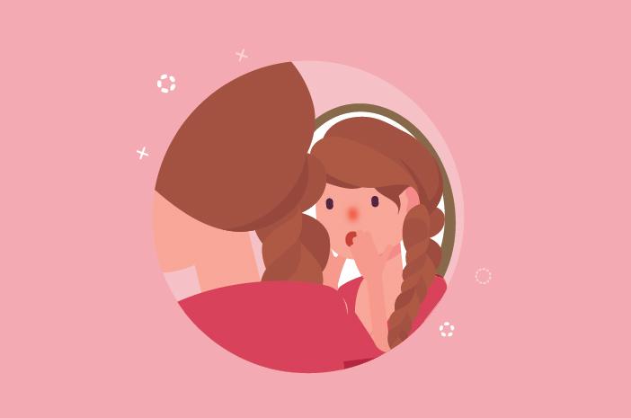 Mitos atau Fakta, Rosacea Bisa Sebabkan Hidung Memerah