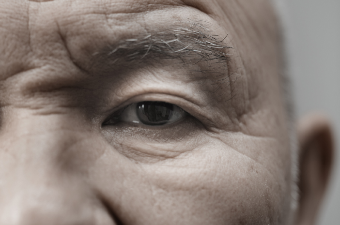 Sindrom Horner, gangguan saraf otak, tumor