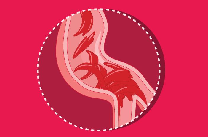 5 fakta mengenai anemia sel sabit
