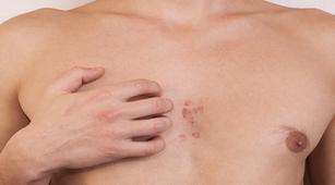 4 Komplikasi Akibat Lupus yang Harus Diperhatikan