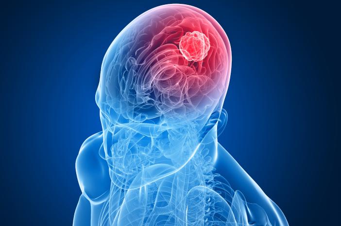 mencegah tumor otak