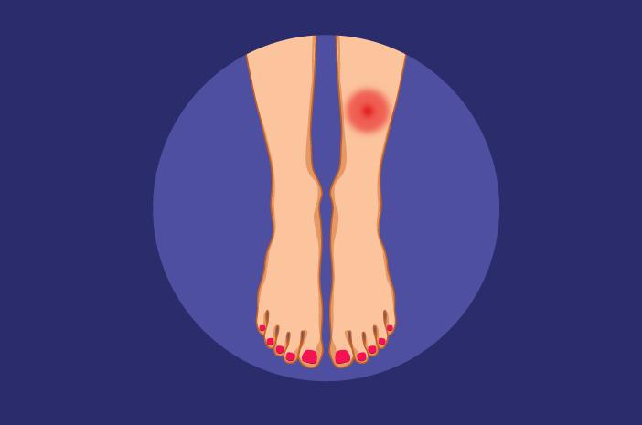 4 hal yang menyebabkan terserang penyakit lyme