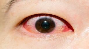 Awas, 20 Hal Ini Bisa Sebabkan Pecahnya Pembuluh Darah di Mata