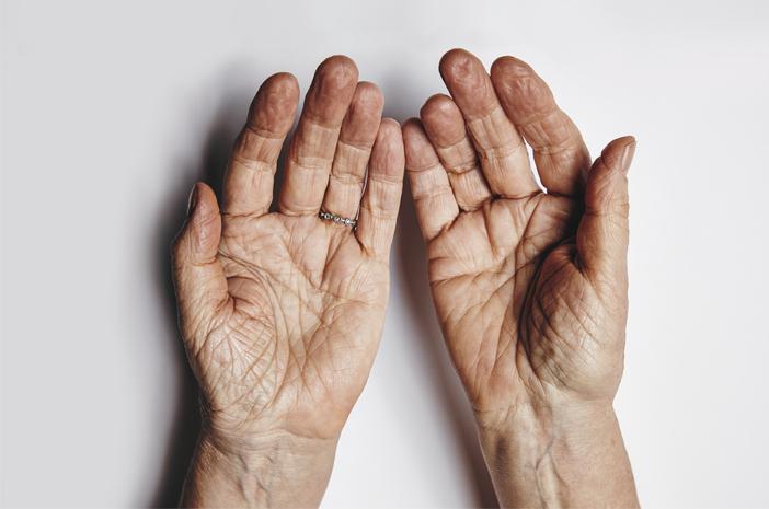 apakah penyakit skleroderma itu menular?
