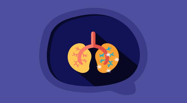 Pneumonia, Sakit Radang Paru-Paru yang Luput dari Perhatian