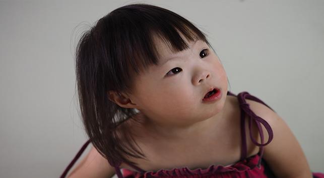 10 Cara Kurangi Faktor Risiko Penyebab Down Syndrome