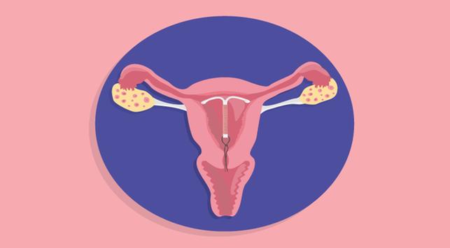 Enggak Perlu Khawatir, Ini 4 Efek Samping Kontrasepsi IUD