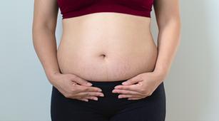 9 Tips Menghilangkan stretch mark setelah Kehamilan