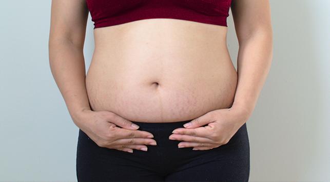 7 Tips Menghilangkan Stretch Mark Setelah Kehamilan