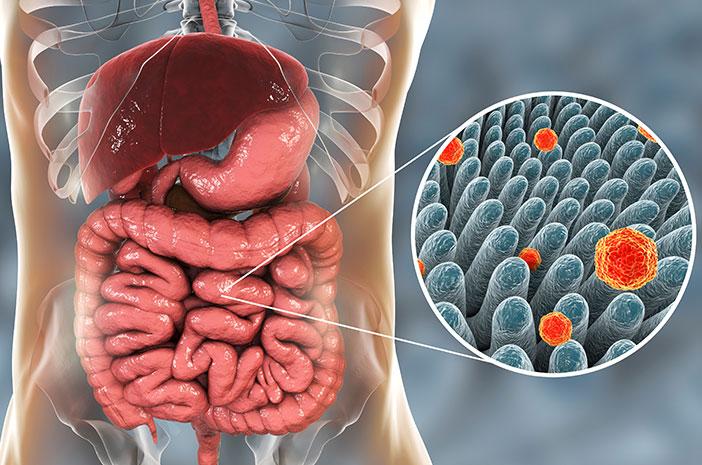 Hepatitis, penyebab hepatitis, hepatitis menyebabkan kanker hati, gejala kanker hati