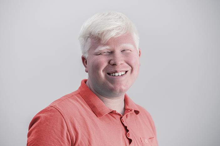 Albinisme,kemampuan melihat