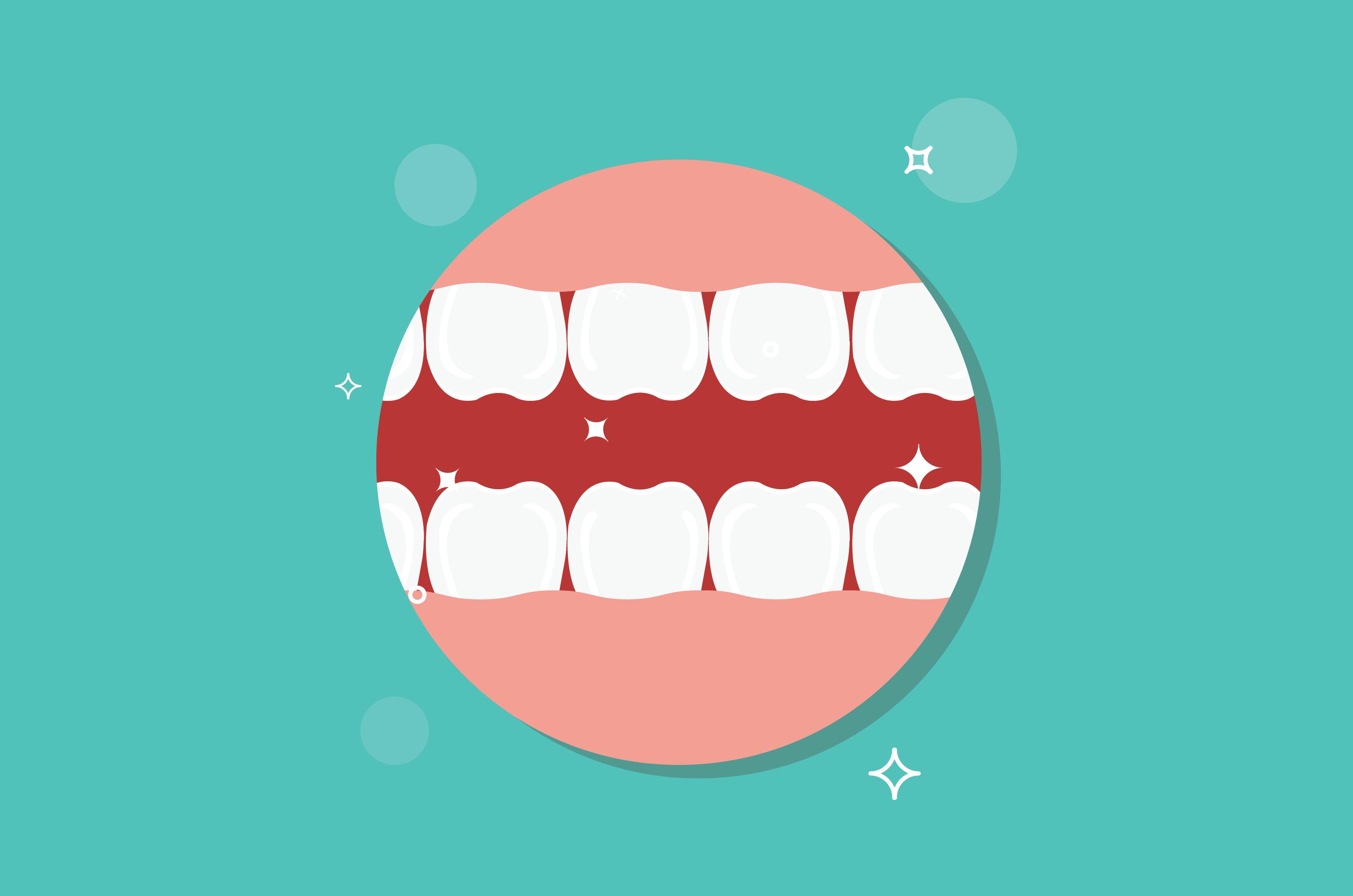 5 hal ini bisa menyebabkan abses gigi