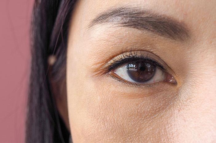 Kerutan Bawah Mata Mengganggu? Ini Cara Mengatasinya