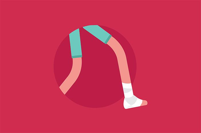 Fisioterapi Cara Paling Ampuh Atasi Keseleo?