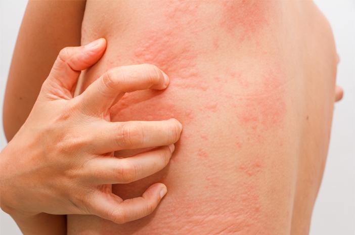 Demam Scarlet Sebabkan Alergi Kulit Berlebihan