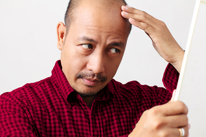 3 Dampak Stres Bisa Sebabkan Kebotakan di Usia Muda