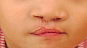 5 Penyebab Bayi Lahir dengan Bibir Sumbing