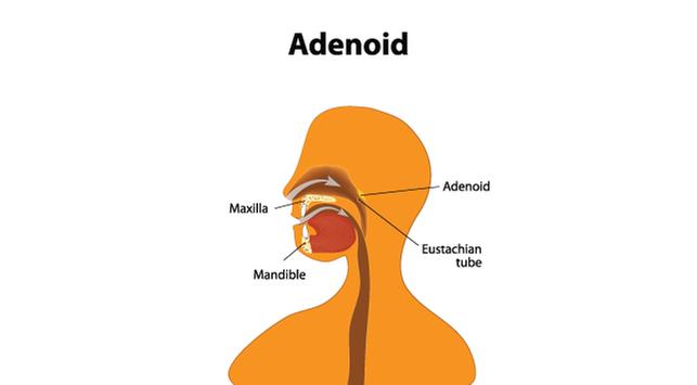 adenoiditis-halodoc