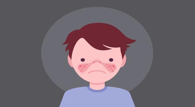 Lupus Tidak Bisa Disembuhkan, Mitos atau Fakta