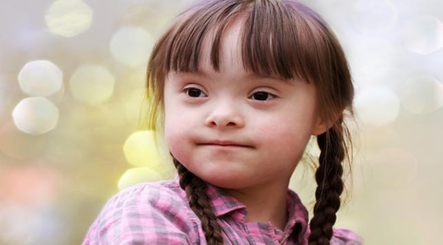 Trisomy 21, Salah Satu Penyebab Sindroma Down Pada Anak