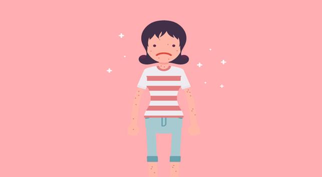 5 Tips  Merawat Cacar Air pada Anak
