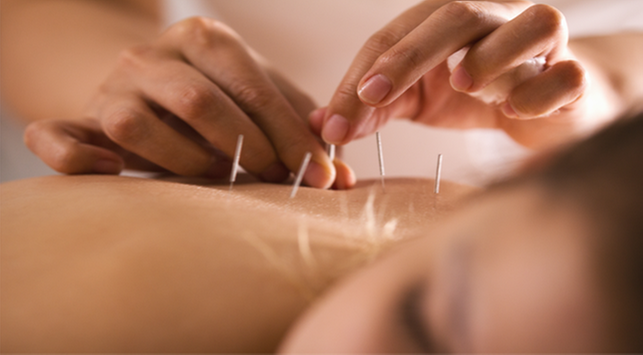 menghilangkan nyeri haid dengan akupuntur, tips akupuntur,