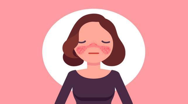 mengatasi penyakit lupus, penyakit lupus, Lupus Eritematosus